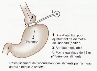 Anneau-gastrique