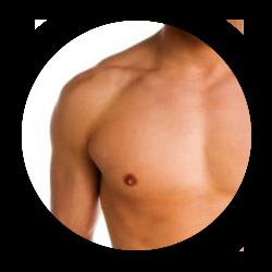 Chirurgies de la silhouette Gynécomastie