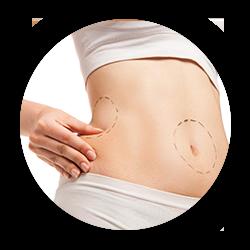 Chirurgies de la silhouette Minilift abdomina