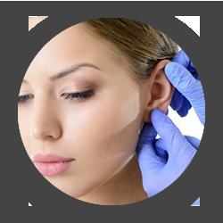 Chirurgies du visage Otoplastie
