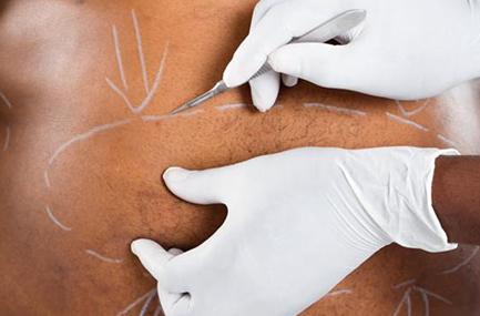 Chirurgie de l'obésité Sleeve gastrectomie