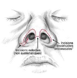 Rhinoplastie en Tunisie Types d'incisions