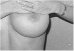 Après une augmentation mammaire en Tunisie