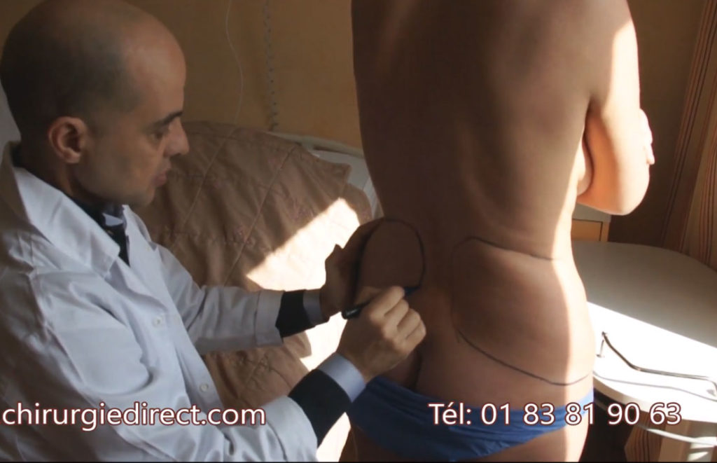 video-liposuccion